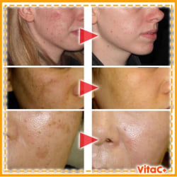 15ml Instant Blemish Removal Spot Gel Vitamin C Whitening Anti