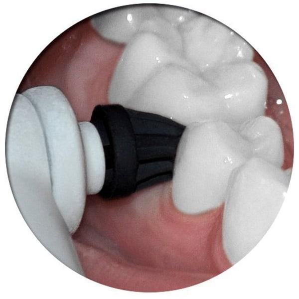 Polera själv -Passar OralB eltandborste -inkl 2x2gram polerpasta Vit
