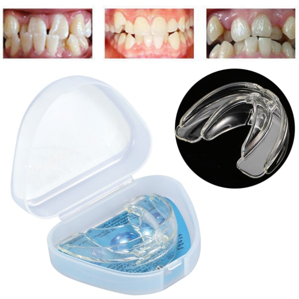 Straighten Teeth Tray Retainer Crowded Irregular Teeth Corre