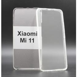 Front & Back skal Xiaomi Mi 11