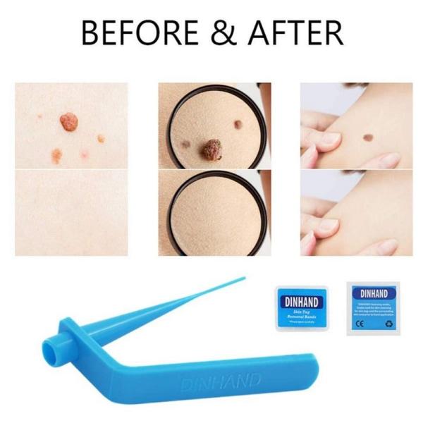 Micro Tag Band Skin Tag Remover Kit för snabb och effektiv hud T