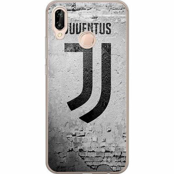 Huawei P20 Lite TPU Mobilskal Juventus FC