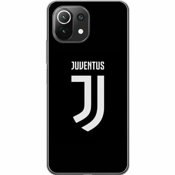 Xiaomi Mi 11 Lite 5G Thin Case Juventus